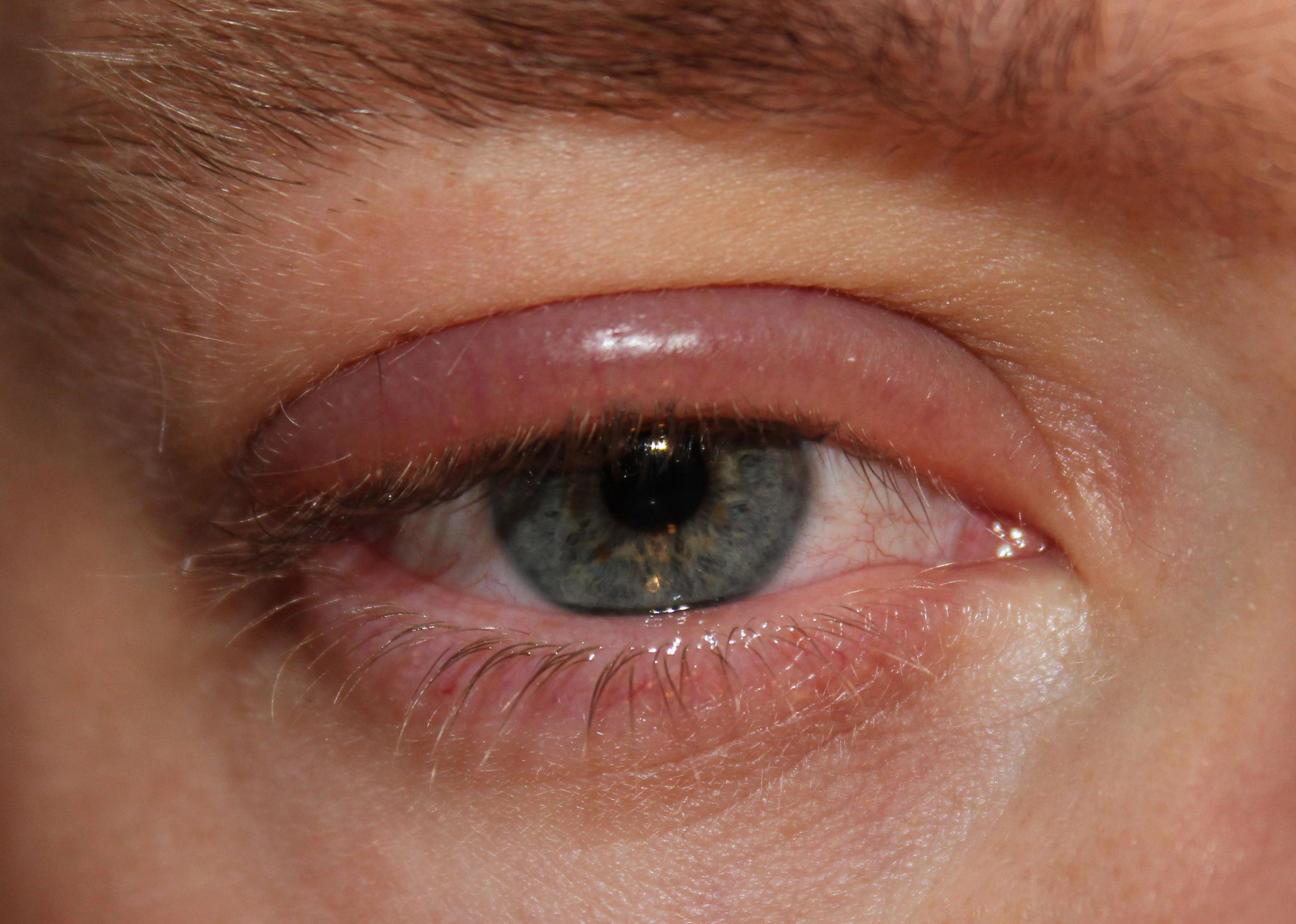 В домашних условиях лечить покраснение глаза 936