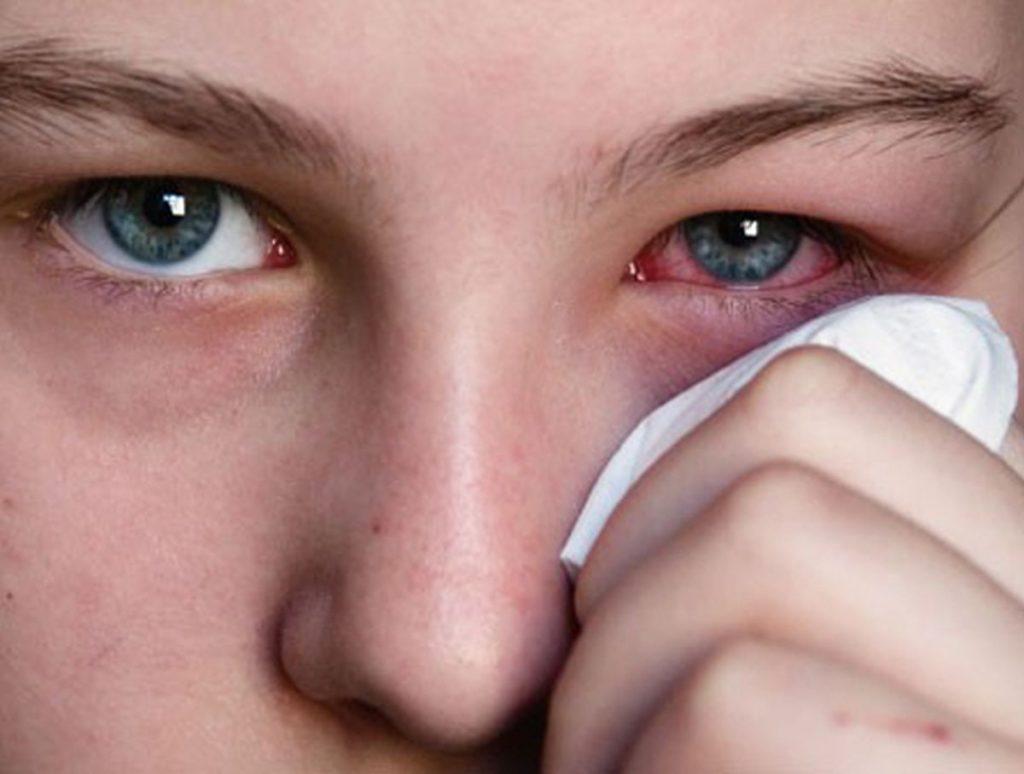 Слезиться один глаз чем лечить в домашних условиях 848