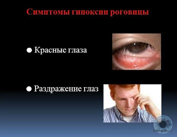 Simptomy-gipoksii-rogovicy