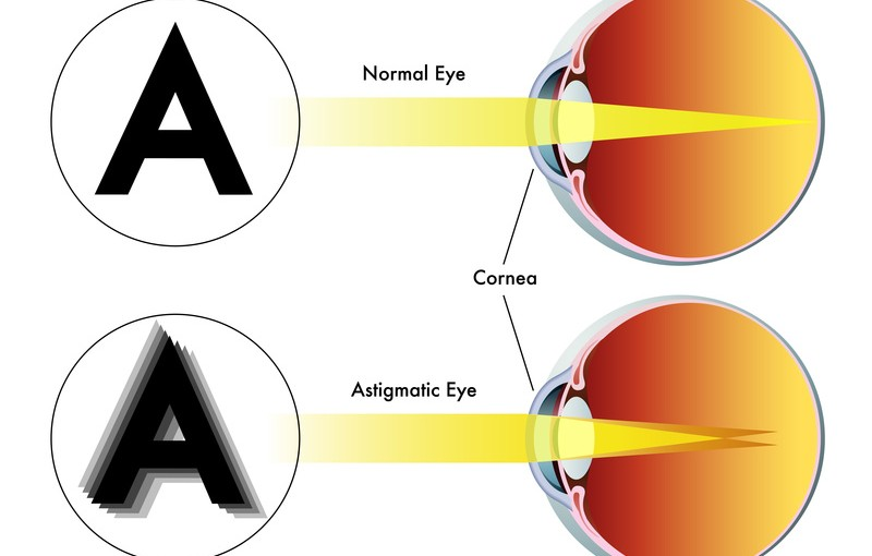 Астигматизм - болезнь глаз