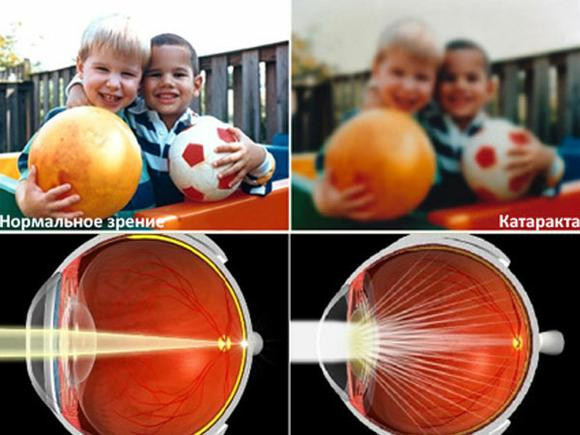 Нормальное зрение и зрение с катарактой