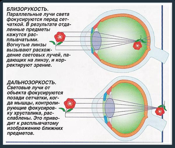 Отличия близорукости от дальнозоркости
