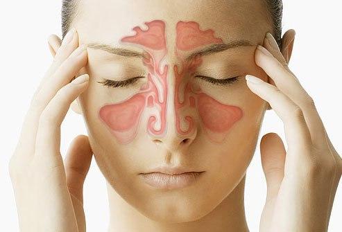 Причиной боли в глазах могут быть вызваны тонзиллитом или гайморитом