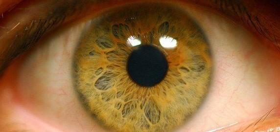 Симптомы отслойки сетчатки глаза
