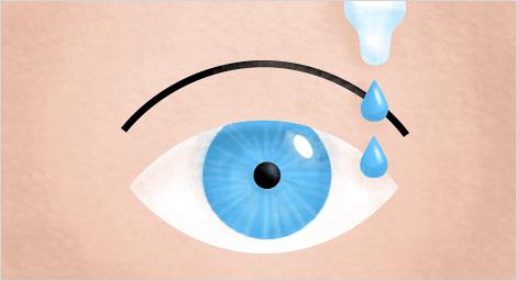 Способ применения глазных капель
