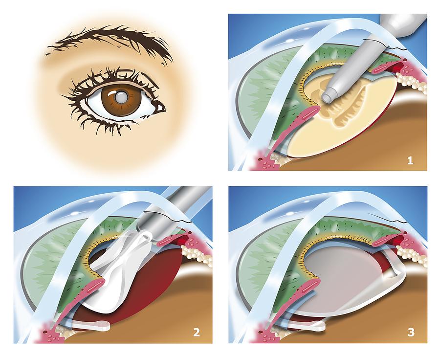 Удаление хрусталика с помощью факоэмульсификации экстракции
