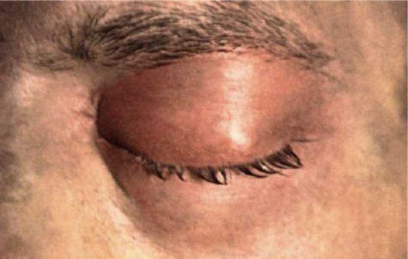 Флегмона на глазу