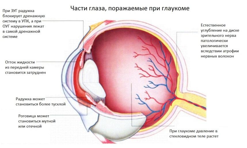 Части глаза, поражаемые при глаукоме