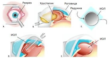 Экстракапсулярная экстракция при катаракте глаз