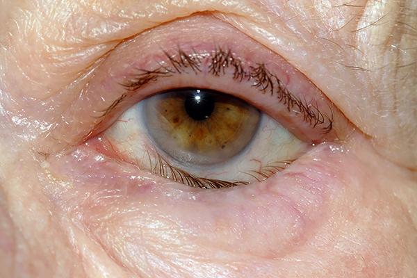 заболевания век кожные