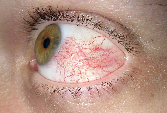 Гиперемия как побочный эффект от глазных капель Дикло-Ф