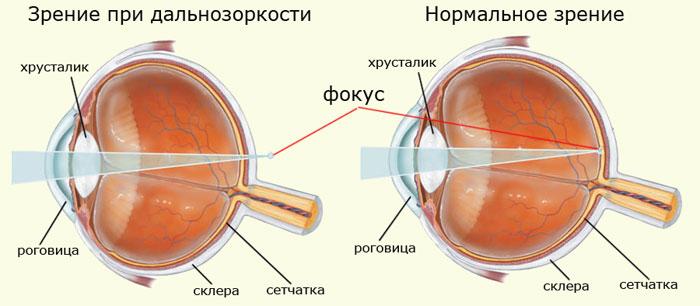 Зрение при дальнозоркости и нормальное зрение