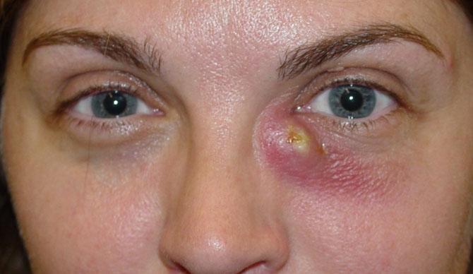 Инфекционное воспалительное заболевание - дакриоцистит