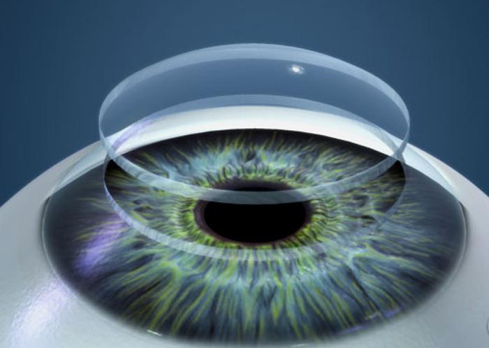 Как правильно выбрать контактные линзы