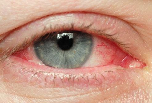 Красные глаза - побочный эффект от ношения линз ACUVUE TruEye