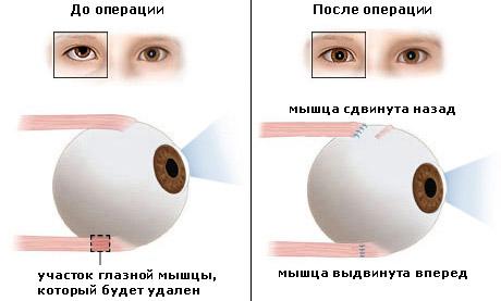 Лечение косоглазия хирургическим путем у детей