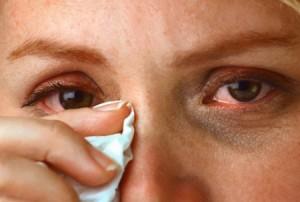 Повышенная слезоточивость глаз