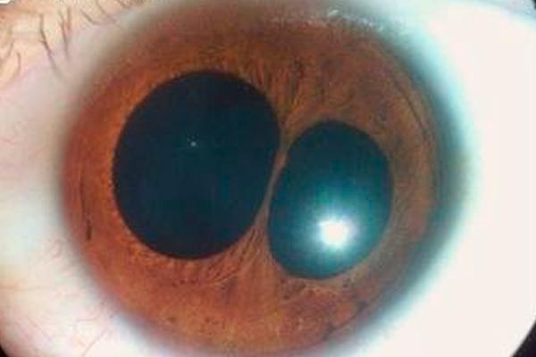 Поликория – наличие нескольких зрачков