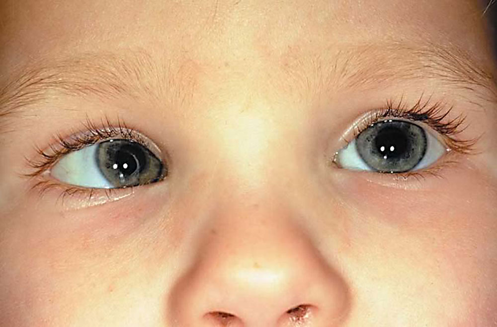 При наличии содружественного косоглазия глазные яблоки способны двигаться в разных направлениях