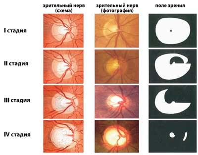 Стадии атрофии зрительного нерва