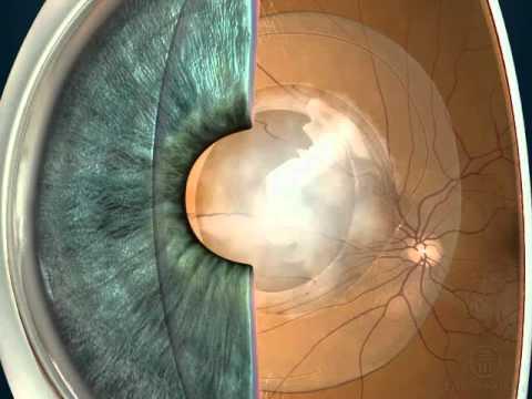 Вторичная катаракта после замены хрусталика: лечение