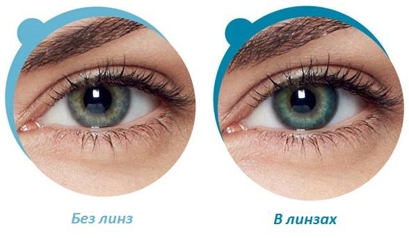 Глаза в линзах Acuvue Oasys и без них