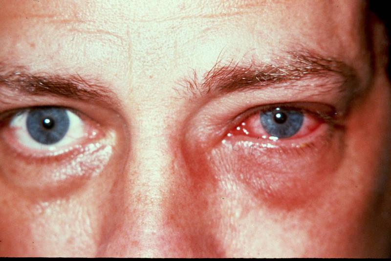 Пример вирусного конъюнктивита