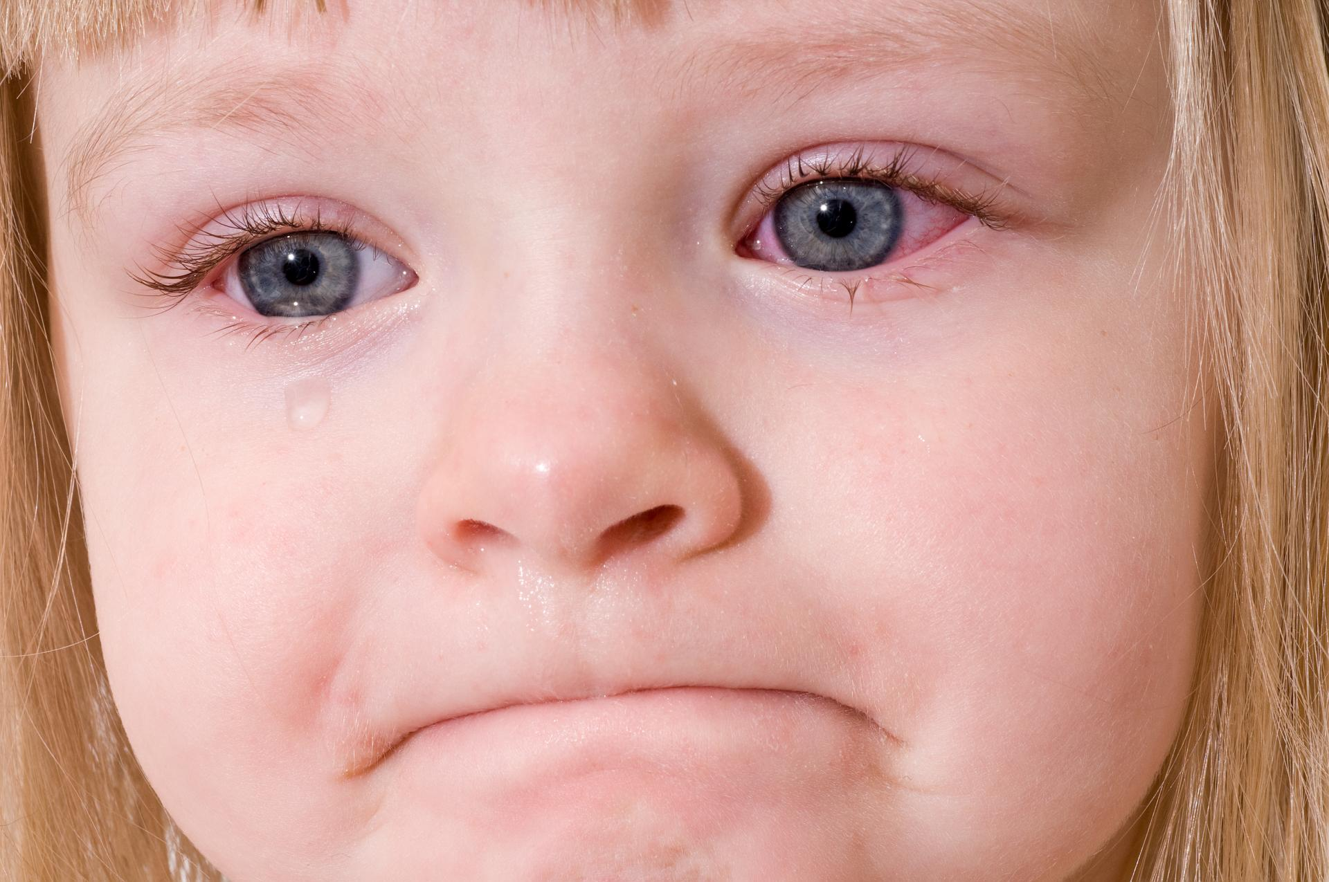 Аллергический конъюнктивит у ребёнка