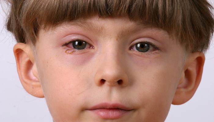Воспаленные глаза у ребенка