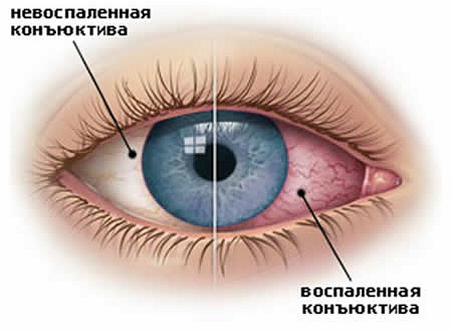 Глазные капли от коньюктивита