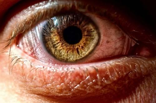 Из-за долгой работы за компьютером происходит пересыхание слизистой оболочки глаз