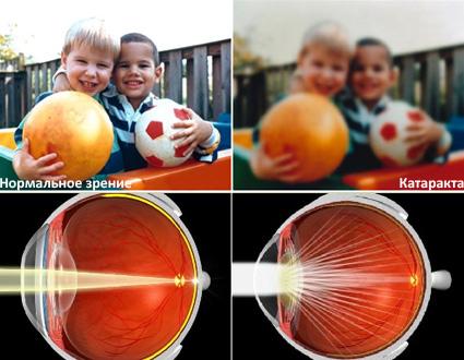 Как видит человек с хорошим зрением и человек с катарактой