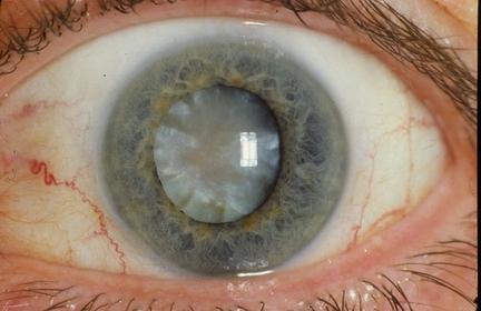 Лечение катаракты у пожилых людей