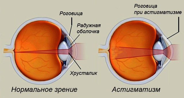 Нормальное зрение и зрение при астигматизме