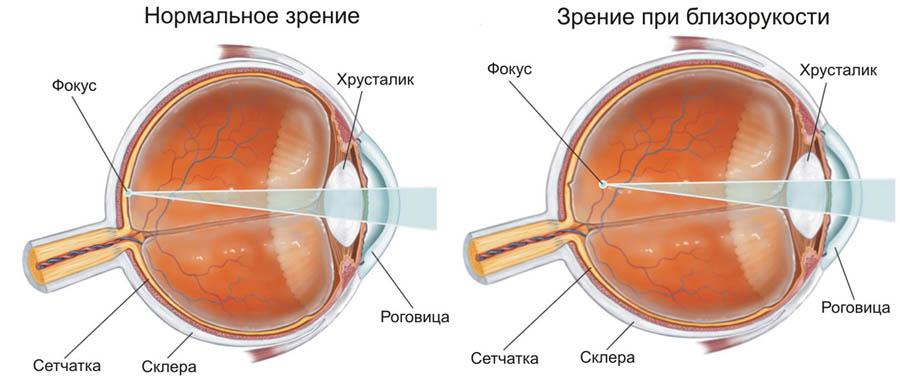 Нормальное зрение и зрение при близорукости