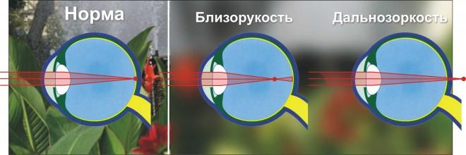 Нормальное зрение и зрение с нарушением