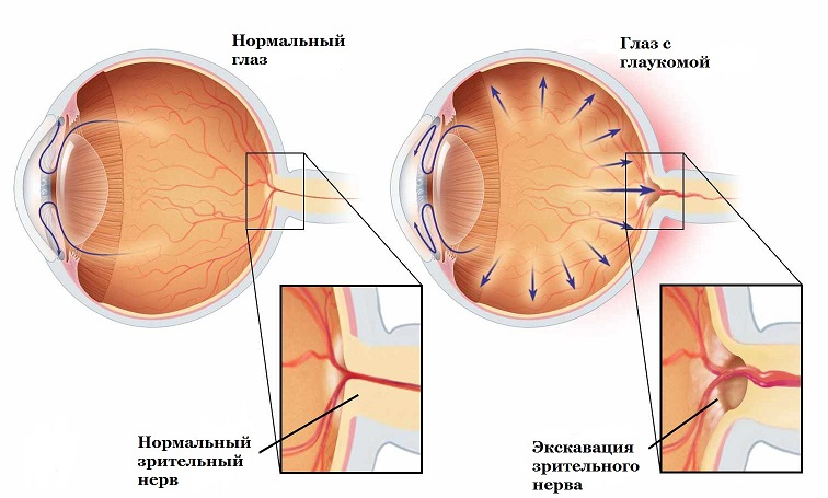 Применение Цикломеда не рекомендуется пациентам с глаукомой глаза