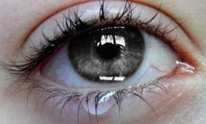 Причины слезоточивости глаз