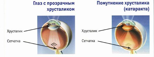 Разница между здоровым глазом и глазом с катарактой