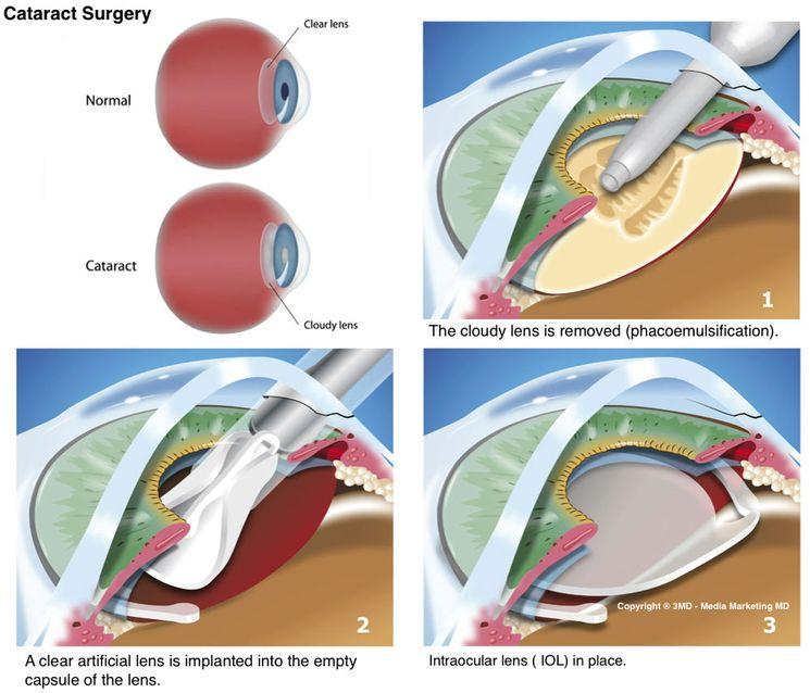 Удаление катаракты операционным путем