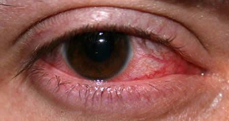 Витабакт применяют для лечения кератитов