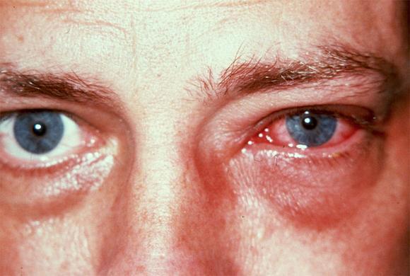 В менее воспаленный глаз нужно капать реже