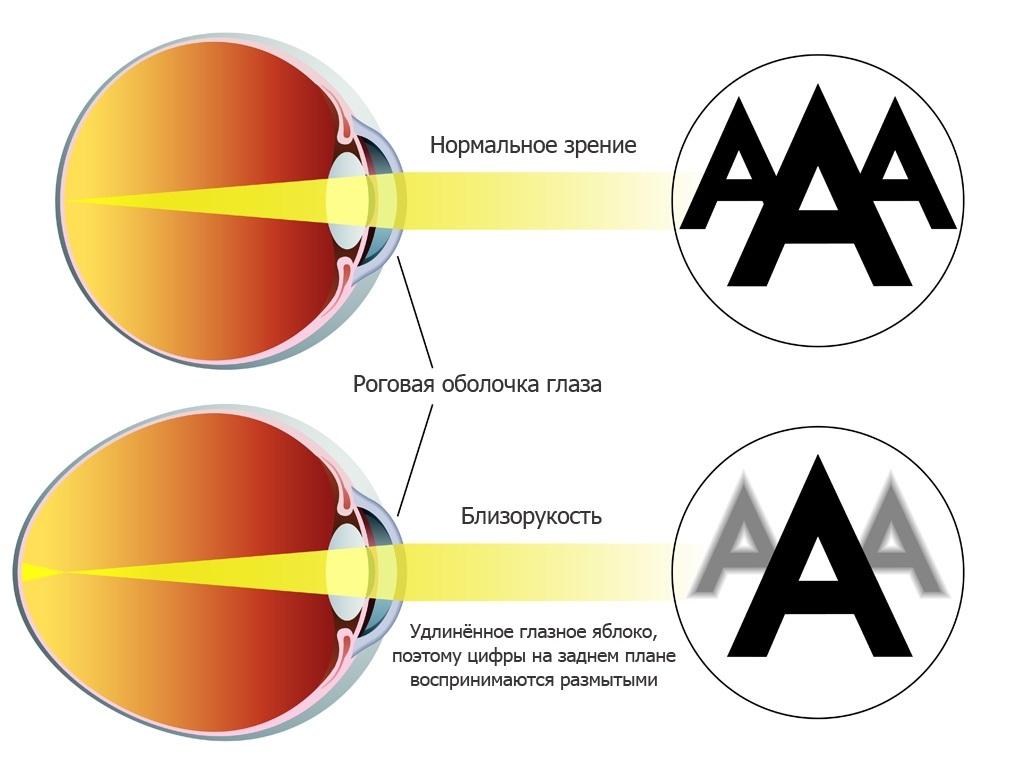 Глазное яблоко с хорошим зрением и с близорукостью
