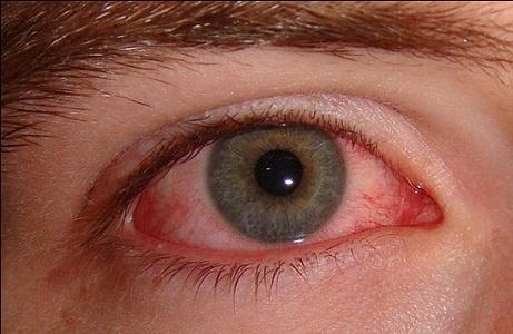 Глазные капли Лекролин применяют при аллергическом конъюнктивите