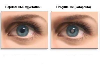 Глазные капли Таурин применяют для лечения и профилактики катаракты