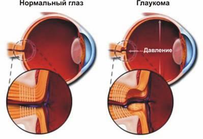 Глаукома может стать причиной болей в глазах