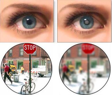 Зрение здорового глаза и глаза при катаракте