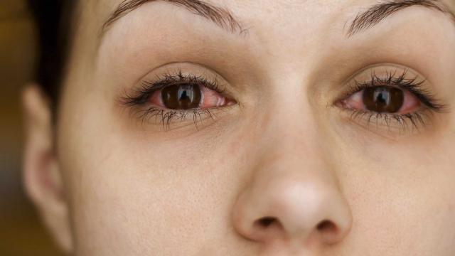 Ирифрин применяют для лечения синдрома «красного глаза»
