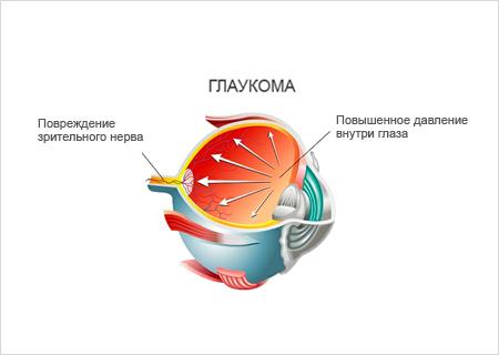 Ирифрин противопоказан при глаукоме узкоугольного или закрытоугольного типа