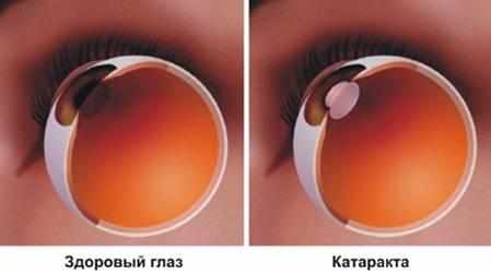 Катаракта – это помутнение хрусталика глаза